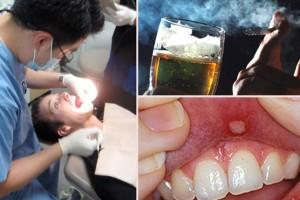 Ραγδαία αύξηση του καρκίνου του στόματος - Ένοχοι: το τσιγάρο και το ποτό