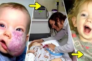Κοριτσάκι που γεννήθηκε με ένα τεράστιο όγκο στο πρόσωπο μεταμορφώθηκε εντελώς - Δείτε πως είναι σήμερα (Video)