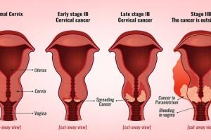 Καρκίνος του τραχήλου της μήτρας: Αυτά είναι τα 6 ύπουλα σημάδια που πρέπει να γνωρίζετε
