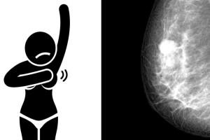 Αυτά είναι τα συμπτώματα του καρκίνου στο στήθος, που καμία γυναίκα δεν πρέπει να τα αγνοήσει (video)