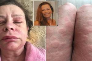 Καταγγελία 49χρονης γυναίκας που έκανε το εμβόλιο της AstraZeneca: «Μεταμορφώθηκα σε εξωγήινο τέρας» (photos)