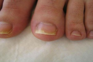 Αν παρατηρήσετε αυτό το σημάδι στα νύχια των ποδιών σας τότε πρέπει να επισκεφθείτε αμέσως το γιατρό σας