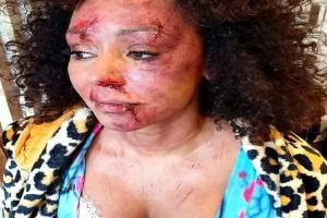 Ανατριχιάζει η εικόνα της 45χρονης τραγουδίστριας Μελ Μπι - Με αίματα και μελανιές στο πρόσωπο της! (Video)