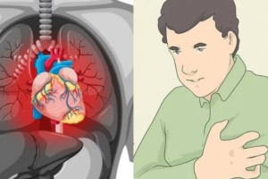 Έμφραγμα: 8 προειδοποιητικά σημάδια που στέλνει το σώμα ένα μήνα πριν την καρδιακή προσβολή