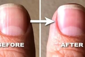 Γραμμές στα νύχια: Δείτε τι είναι και πώς μπορείτε να τις μειώσετε