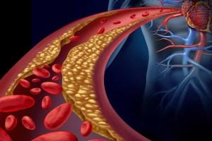 Χοληστερίνη τέλος! 5+1 φυσικοί τρόποι για να τη ρίξετε χωρίς χάπι - 10 τροφές που καθαρίζουν τις αρτηρίες