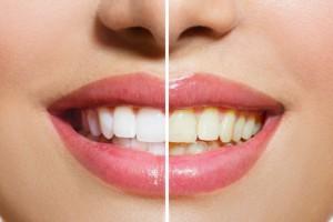 9 +1 πασίγνωστα φαγητά που προκαλούν ανεπανόρθωτες βλάβες στα δόντια σας