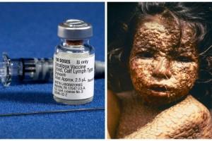 Ευλογιά: Η ασθένεια που εξαφάνισαν τα εμβόλια – Το παράδειγμα για τους αντιεμβολιαστές
