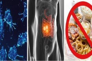 """Αποκάλυψη ογκολόγου: Ασθενείς με καρκίνο του εντέρου """"έδειξαν"""" την τροφή που είναι επικίνδυνη"""
