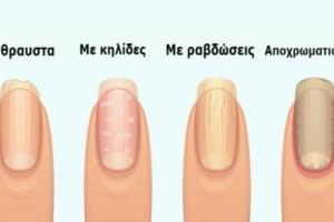 7+1 σημάδια στα νύχια που προειδοποιούν για σοβαρά προβλήματα υγείας