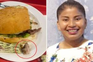 Φρίκη για 25χρονη: Βρήκε ανθρώπινο δάχτυλο μέσα στο μπέργκερ που έτρωγε!