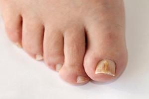 Δώστε προσοχή! Αυτό το σημάδι στα νύχια δείχνει αν κινδυνεύετε από καρκίνο