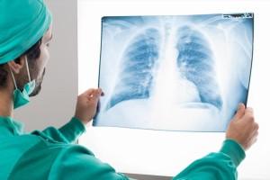 Είσαι παθητικός καπνιστής; Κινδυνεύεις από καρκίνο του πνεύμονα - Ποια είναι τα συμπτώματα