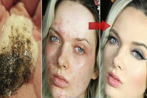 2 Μόλις συστατικά είναι αρκετά για να δείτε το δέρμα σας να αλλάζει μια για πάντα