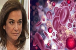 Τι είναι το πολλαπλό μυέλωμα - Ο τύπος καρκίνου που διαγνώστηκε η Ντόρα Μπακογιάννη