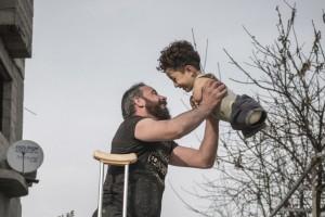 Συγκλονίζει η φωτογραφία της χρονιάς: Ο ακρωτηριασμένος πατέρας και το παιδί του