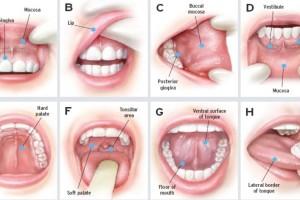 Καρκίνος: Το πρόβλημα στο στόμα που αυξάνει τον κίνδυνο 90%!