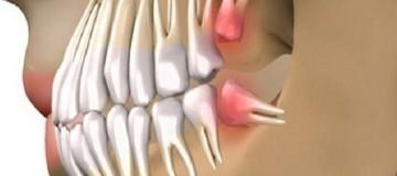 Επαναστατική ανακάλυψη: Πείτε αντίο στα οδοντικά εμφυτεύματα και μεγαλώστε τα δικά σας δόντια μέσα σε 9 εβδομάδες