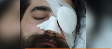 Φρίκη: Φίλαθλος του Παναθηναϊκού έχασε το μάτι του στα επεισόδια του ΟΑΚΑ!