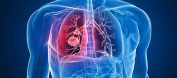 Πώς συνδέεται ο καρκίνος με το κάπνισμα και τον θάνατο;