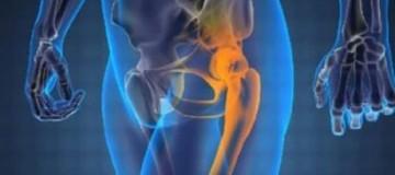 Καρκίνος: Τι είναι το οστεοσάρκωμα; Τι συμβαίνει στα οστά;