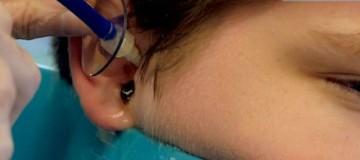 Ο γιατρός εξετάζει το αυτί του μικρού όταν ξαφνικά… Δείτε τι βγαίνει από μέσα!