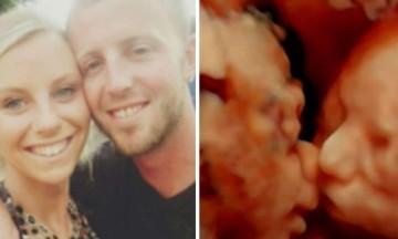 24χρονη έγκυος πήγε για υπερηχογράφημα - Μόλις κοίταξε την οθόνη πάγωσε