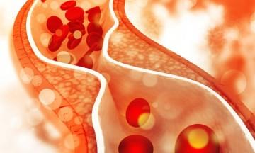 6+1 τρόφιμα που ρίχνουν την χοληστερίνη - Αγοράστε τα αμέσως