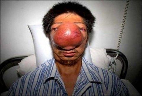 Η πιο τεράστια μύτη που έχετε δεί ποτέ!!