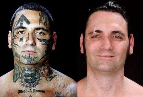 Έκανε 25 εγχειρήσεις για να βγάλει ρατσιστικά τατουάζ