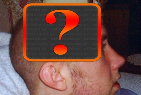 Δεν θα το πιστεύετε: Αυτός ο νέος έχει μισό κεφάλι!!!