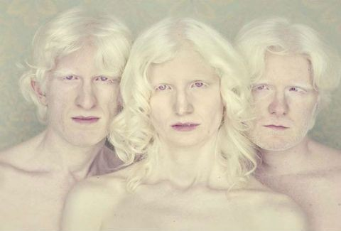 ΔΕΙΤΕ την εντυπωσιακή συλλογή φωτογραφιών «Albino»(PHOTOS)