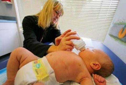 Γεννήθηκε μωρό - γίγαντας 8 κιλών!