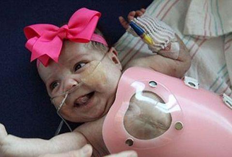 ΣΥΓΚΛΟΝΙΣΤΙΚΟ! Κοριτσάκι γεννήθηκε με την καρδιά έξω από το σώμα!!! (VIDEO)