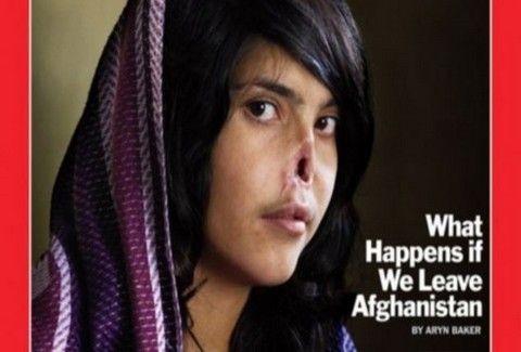 Αυτό είναι το νέο πρόσωπο της γυναίκας που βασανίστηκε στο Αφγανιστάν κι έγινε εξώφυλλο του Time!!! (PHOTOS)