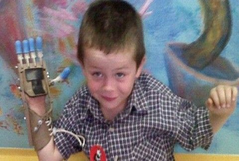 ΣΥΓΚΙΝΗΤΙΚΟ!! Δύο άγνωστοι δώρισαν σε 5χρονο αγοράκι το προσθετικό μέλος που χρειαζόταν! (PHOTOS)
