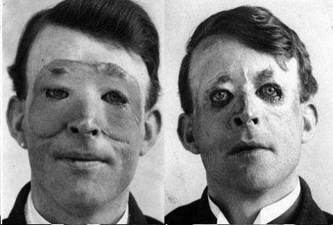 Πολύ πριν τον... Φουστάνο! Πότε, πού & σε ποιόν έγινε η πρώτη πλαστική χειρουργική επέμβαση;;;