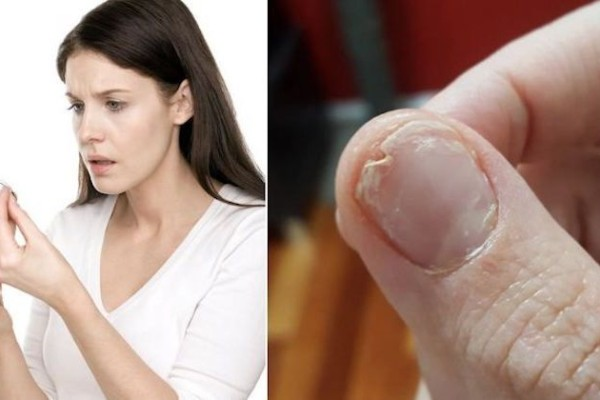 Έχετε απώλεια μαλλιών, ευαίσθητα νύχια ή δεν κοιμάστε καλά; Φάτε αυτό και θα σωθείτε!
