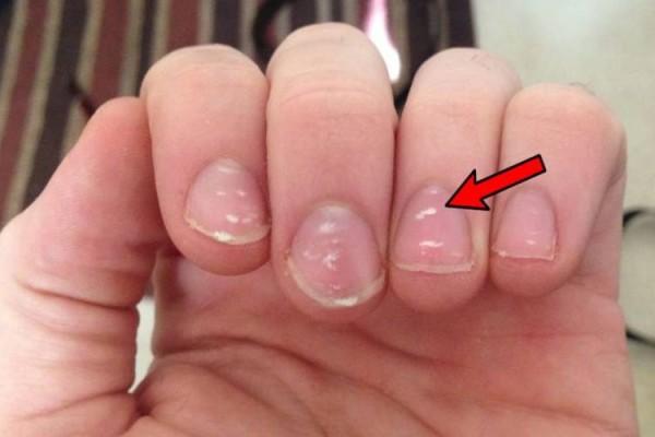 Αν δείτε αυτά τα σημάδια στα νύχια σας καλέστε αμέσως τον γιατρό!