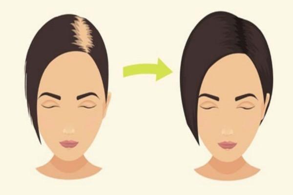 Φοβερή πατέντα: Πανεύκολο σαμπουάν από μαγειρική σόδα που θα σας σώσει από τριχόπτωση και θα σας μακρύνει το μαλλί!