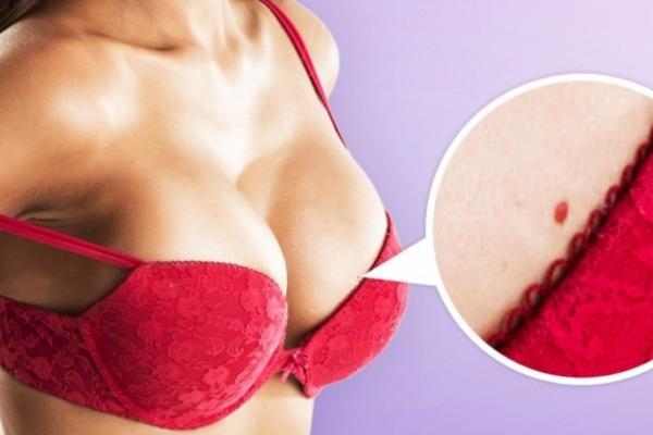 Μήπως κι εσείς βγάζετε μικρά κόκκινα στίγματα στο δέρμα σας; Δείτε τι τα προκαλεί και πώς να τα εξαφανίσετε!
