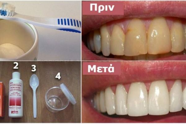 Αποκτήσετε κάτασπρα δόντια και απαλλαγείτε από την πλάκα τα χωρίς να ξοδέψετε χρήματα! Θα μείνετε άφωνοι με το αποτέλεσμα