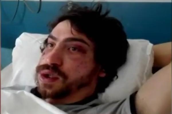 Ο φοιτητής που ξυλοκοπήθηκε σπάει την σιωπή του:
