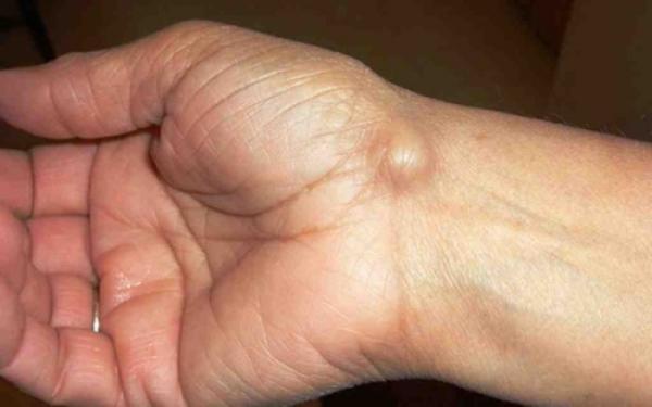 Αν δεις κάτι τέτοιο στο σώμα σου πήγαινε αμέσως στον γιατρό!