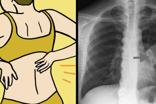 8 σημάδια του καρκίνου του πνεύμονα που κάθε γυναίκα οφείλει να γνωρίζει!