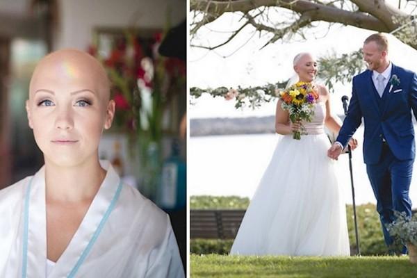 Έχασε τα μαλλιά της λόγω ασθένειας αλλά στον γάμο της αρνήθηκε να βάλει περούκα. Μόλις μάθετε τον λόγο θα δακρύσετε (photos)