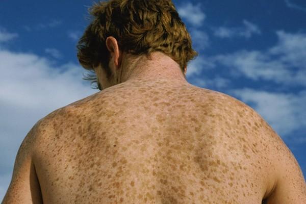 Σκούρες κηλίδες στο δέρμα; Βρήκαμε 5 φυσικούς τρόπους για να θεραπευτείτε (photos)