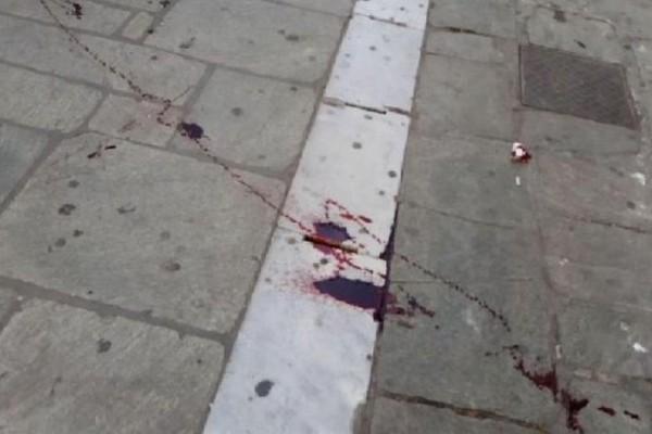 Σοκαριστική είδηση: Αιματηρά επεισόδια οπαδών ΠΑΟΚ & ΑΕΚ στον Βόλο! (Photos)