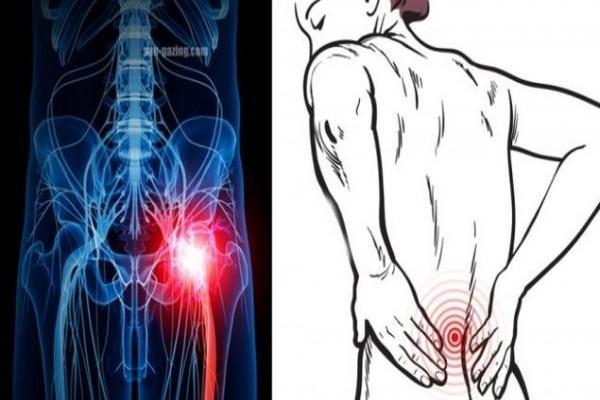 Μεγάλη προσοχή: Οι πόνοι στη μέση μπορεί να σημαίνουν κάτι πολύ πιο σοβαρό για την υγεία!