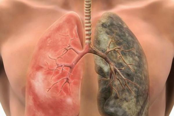 Αυτή η θαυματουργή συνταγή θα διώξει την νικοτίνη και θα καθαρίσει τα πνευμόνια σας σε μόνο 72 ώρες (video)